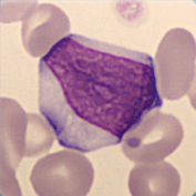 Atypical lymphocytes suspected reactive